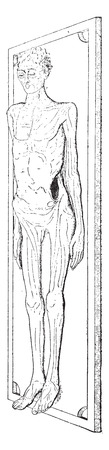 incision: The incision in the body, vintage engraved illustration.