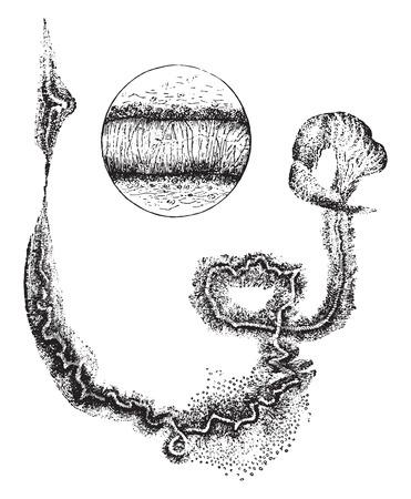 Curschmanns spirals, vintage engraved illustration.