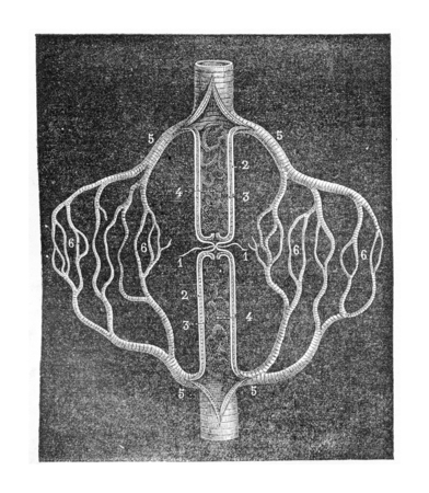 schematic: Figure schematic explaining the collateral circulation that develops after the ligation of an artery, vintage engraved illustration. Usual Medicine Dictionary - Paul Labarthe - 1885.