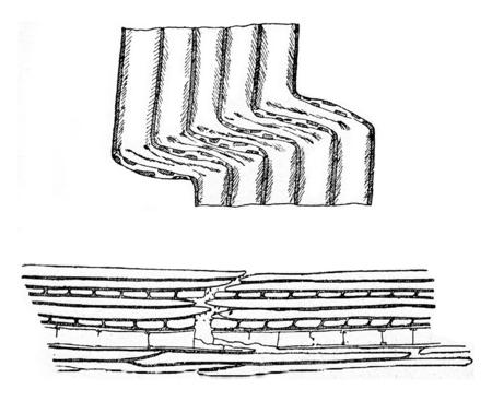 compression: Compression fracture, vintage engraved illustration.
