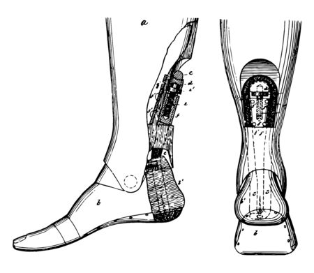 This image depicts an artificial leg having a curved and grooved periphery and supported by the upper end of a screw which operates the same double heel tendon, vintage line drawing or engraving illustration.