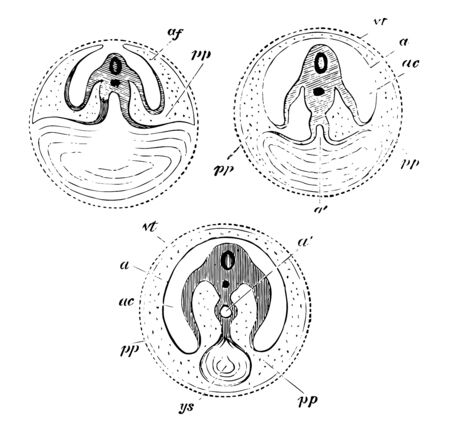 Development of the Yolk Sac which is seen progressively diminishing in size vintage line drawing or engraving illustration.
