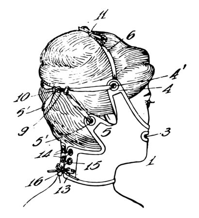 Elastic Facemask as the steel cage worn by a baseball catcher vintage line drawing or engraving illustration.