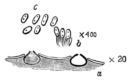 This is a structural image of pycnidal stage of Pleospora herbarum. It is a species of fungus, vintage line drawing or engraving illustration. Ilustração