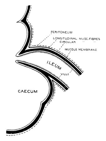This diagram represents Formation of Ileo-caecal Valve, vintage line drawing or engraving illustration.