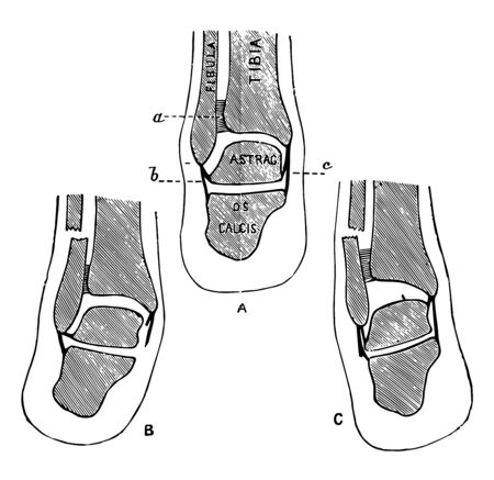 This illustration represents Transverse Section Through the Lower Leg, vintage line drawing or engraving illustration. Иллюстрация