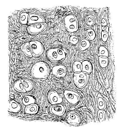 The cells in yellow elastic cartilage are rounded or oval, vintage line drawing or engraving illustration.