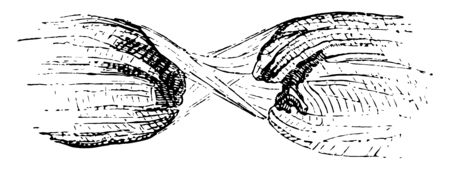 This illustration represents Torn Muscular Fiber, vintage line drawing or engraving illustration.
