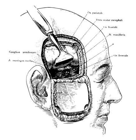 Exposure of the Gasserian ganglion and middle meningeal artery though a flap incision of the scalp and skull, vintage line drawing or engraving illustration.