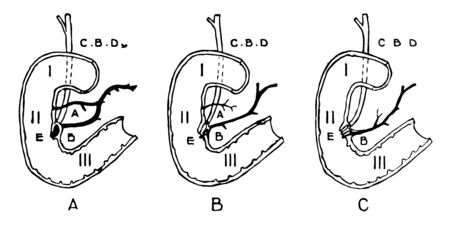 This diagram represents Variations in Termination of the Pancreatic and Bile Ducts, vintage line drawing or engraving illustration.