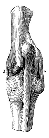 Ligaments of the Elbow Joint where external lateral ligament and internal lateral ligament are present, vintage line drawing or engraving illustration. Standard-Bild - 132981959
