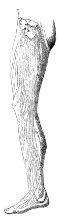 This illustration represents Lymphatics in the Leg, vintage line drawing or engraving illustration. Standard-Bild - 132982059