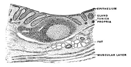 This diagram represents the Transverse section of the vermiform appendix of man, vintage line drawing or engraving illustration.