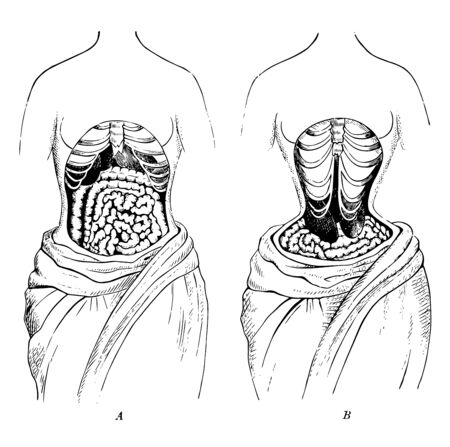 This diagram represents The Natural Position Compared to the Deformed Position of the Internal Organs, vintage line drawing or engraving illustration.