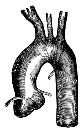 This diagram represents Thoracic Aorta and three branches from left to right are the unnamed ones, vintage line drawing or engraving illustration.