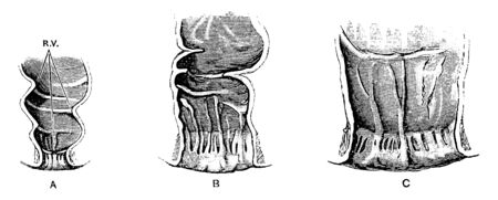 This illustration represents Rectum and Anal Canal in Fetus, vintage line drawing or engraving illustration.  イラスト・ベクター素材