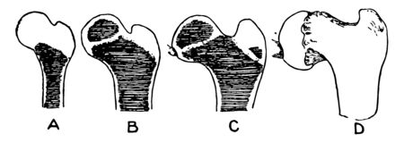 This illustration represents Ossification of the Femur and the Condition of Coxa Vara, vintage line drawing or engraving illustration. Ilustração