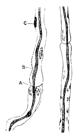 This illustration represents Nerve Fibers of the Sciatic Nerve, vintage line drawing or engraving illustration.