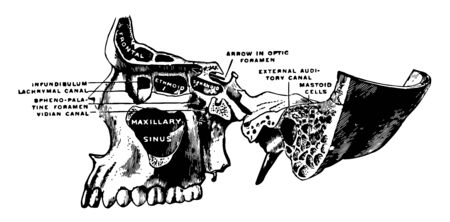 This illustration represents Superior Maxillary Bone and Sinuses, vintage line drawing or engraving illustration.