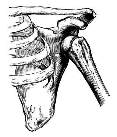 This illustration represents Dislocation of the Humerus, vintage line drawing or engraving illustration.