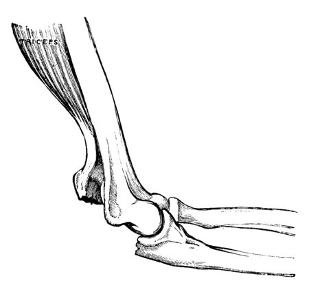 This illustration represents Fractured Olecranon, vintage line drawing or engraving illustration. Ilustrace