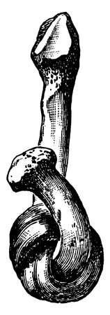 The Fibula tied into a Knot after the Mineral Matter has been dissolved by Acid, vintage line drawing or engraving illustration.