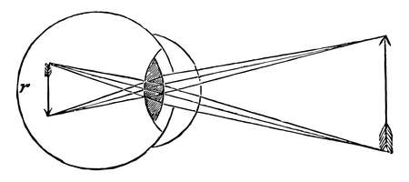 This illustration represents Cornea too Convex on Eye, vintage line drawing or engraving illustration.