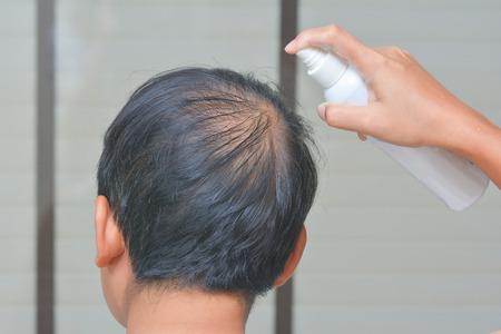 該名男子是噴霧治療脫髮,禿頭 版權商用圖片