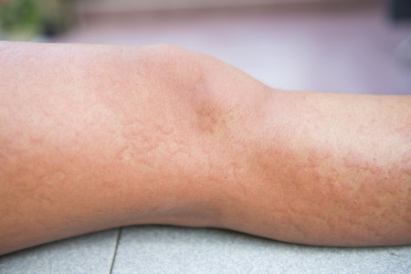 pokrzywka: Allergic reactions caused by urticaria, leg