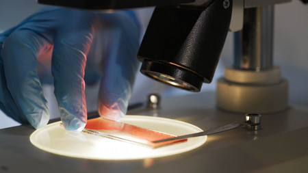 Medical scientist studying blood sample under microscope, biochemical research