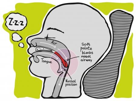 Snoring  Informational graphics, vector Stock Vector - 16435823