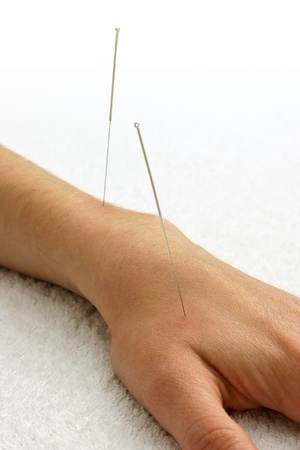 Two silver acupuncture needles inserted into the top of a hand resting on a white towel photo