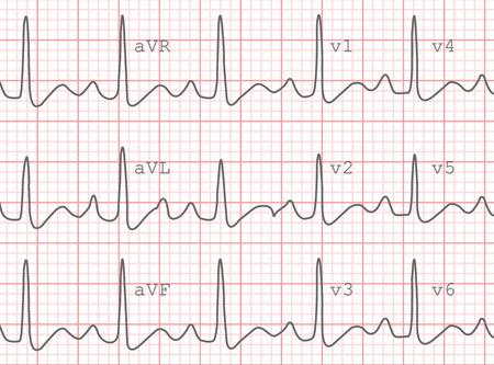 Electrocardiogram Heartbeat