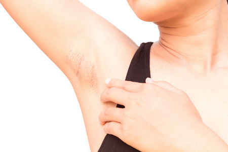 armpits: Women problem black armpit on white background for skin care and beauty concept