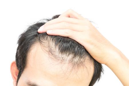 クローズ アップ若い男が深刻な脱毛の脱毛の概念や医療シャンプー製品白い背景の上の問題