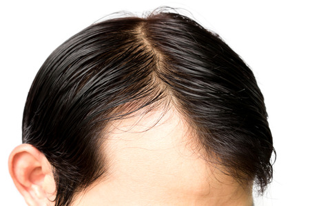hairline: Closeup young man serious hair loss problem for hair loss concept