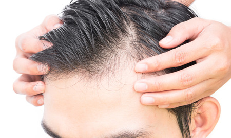 hair treatment: Young man serious hair loss problem for hair loss concept