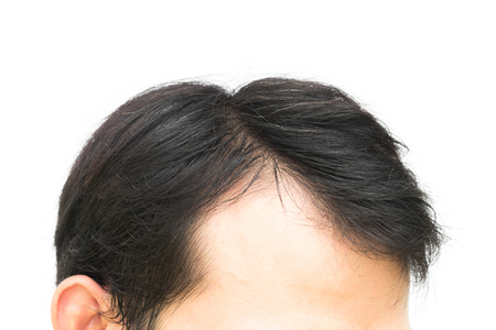 hombre flaco: Closeup young man serious hair loss problem for hair loss concept