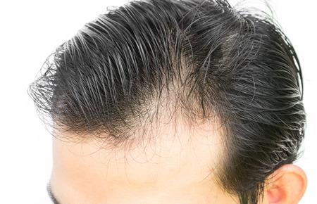 若い男髪損失概念の深刻な抜け毛の問題