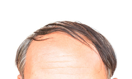 hairline: Closeup old man serious hair loss and grey hair problem with white background, hair loss concept