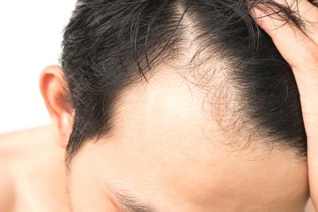 calvo: hombre joven grave problema la pérdida de cabello para el concepto de pérdida de cabello Foto de archivo