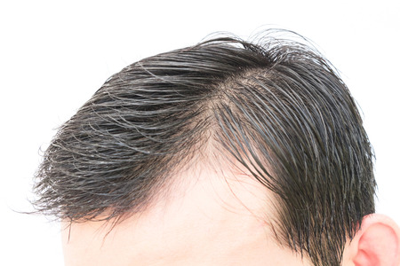 hairline: Young man serious hair loss problem for hair loss concept