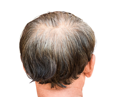 Closeup old man serious hair loss and grey hair problem with white background, hair loss concept