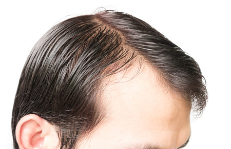 Closeup young man serious hair loss problem for hair loss concept