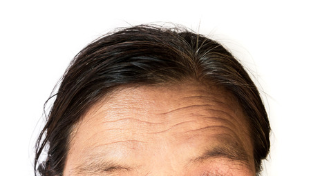 Closeup wrinkles on forehead old woman