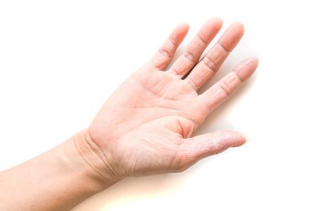 symptom: Hand atopic dermatitis symptom skin texture on white background Stock Photo