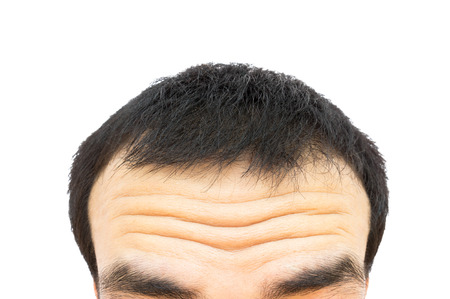 Closeup wrinkles on forehead young man, Hair loss for health care concept