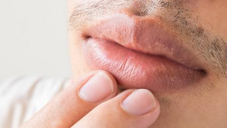 herpes simplex: Closeup of lips man problem health care, Herpes simplex Stock Photo