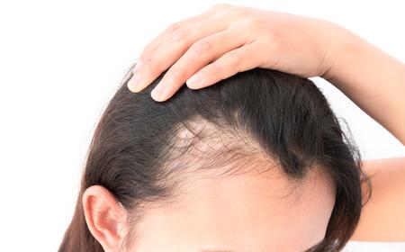 calvo: Mujer grave problema de pérdida de cabello para el champú cuidado de la salud y el concepto de producto de belleza Foto de archivo