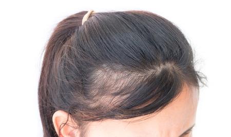 Mujer grave problema de pérdida de cabello para el champú cuidado de la salud y el concepto de producto de belleza Foto de archivo
